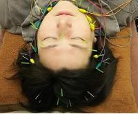 美容鍼・顔パルスコース