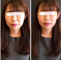 頭の筋肉を緩める頭蓋骨調整小顔コース