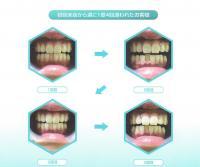 歯の美白セルフホワイトニング