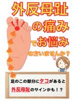 外反母趾治療(30分)