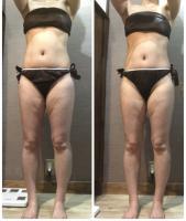 (新規様限定)いらない脂肪をそぎ落とすパイラソード&シーリングヒート