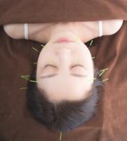 美顔鍼(びがんしん)
